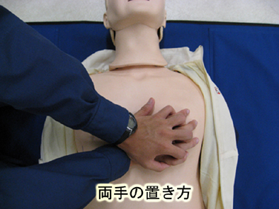 圧迫 胸骨